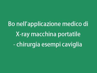 Bo nell'applicazione medico di X-ray macchina portatile - chirurgia esempi caviglia